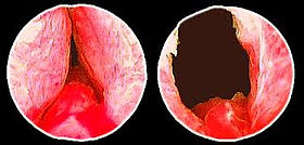 rtu prostata pós operatório