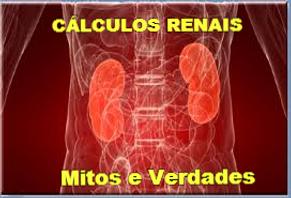 CALCULO RENAL COLICA LASER MITOS E VERDADES