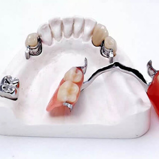 Modern Protez