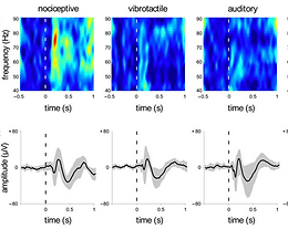 Pain-related oscillations