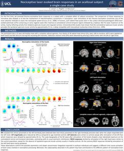 Lenoir et al. Nociceptive laser-evoked brain responses in an acallosal subject: a single case study