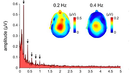 EEG frequency tagging