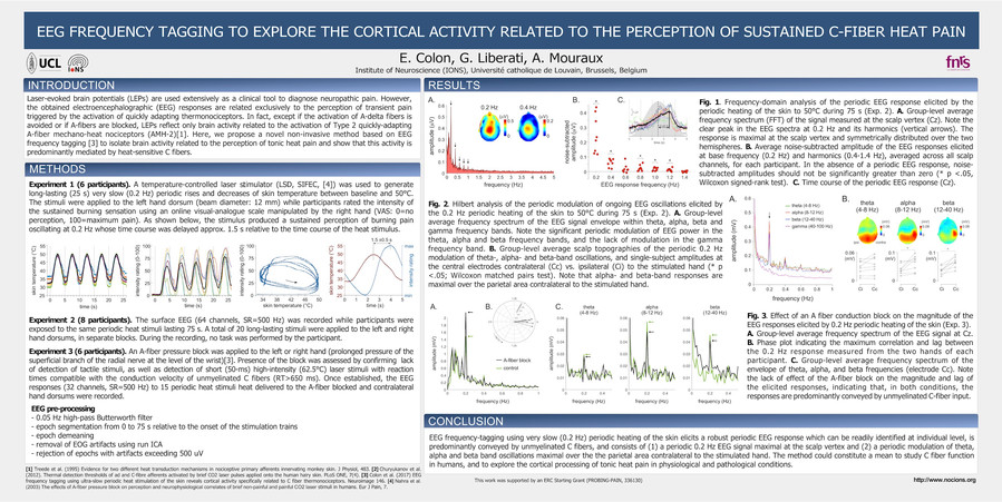 Colon et al. EEG frequency tagging to explore the cortical activity related to the perception of sustained C-fiber heat pain. Neupsig 2017, Göteborg.