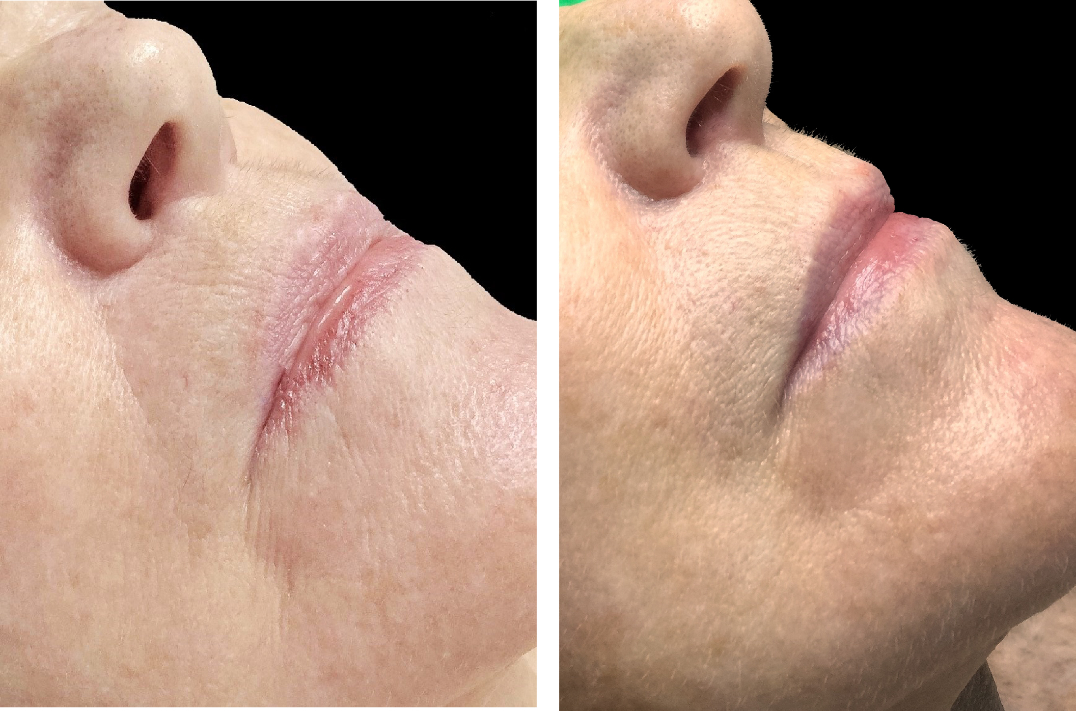 celluma before after firming 1