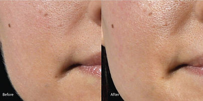 Dermaplaning, Increases absorption of topical products.  Immediately diminishes the appearance of fine lines and wrinkles.  Primes skin for chemical peel.  Creates healthier, more radiant appearance.  Great anti-aging skincare treatment without the chemicals.  May be added to facial and chemical peels or preformed alone.