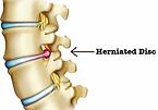 טיפול בכאבי בלט ופריצת דיסק מותנית וצווארית