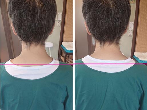 肩こりで首が縮こまると前側のたるみも起こります~(;>_<;)💦💦