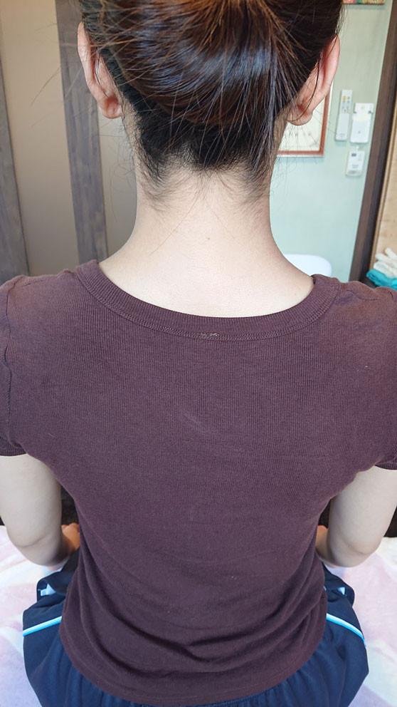 肩こりでこんなに首が縮んでたのが伸びてすっきりしました