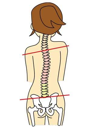 骨盤と背骨の歪みは骨盤矯正が必要です