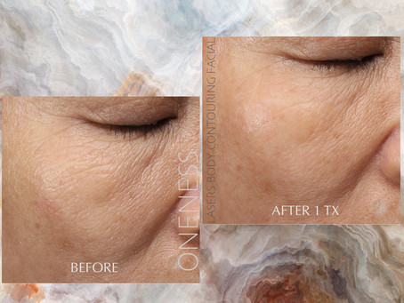 Testimonial 9 – Ultimate Collagen Regeneration 我的客戶·您的見證 系列9 - 終極膠原再生