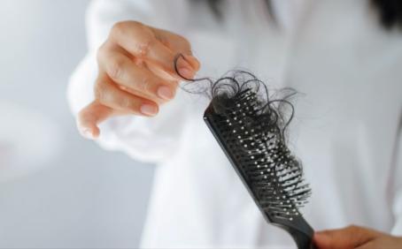 Seasonal hair loss!