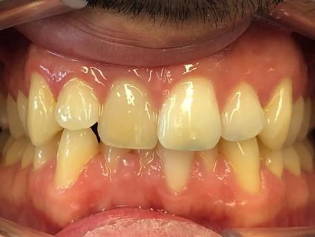 Osynlig Tandställning  3 månader