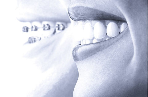 Learn-These-Things-Prior-To-Having-Your-Invisalign-Aligners_edited_edited_edited.jpg