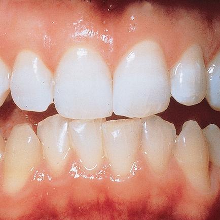 Tandblekning.jpg