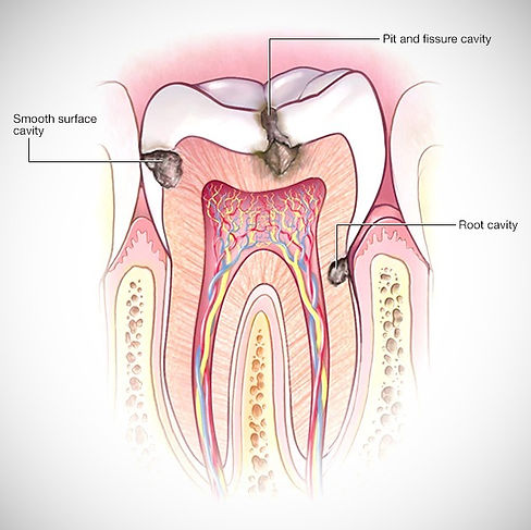 Karies / Hål i tanden.jpg