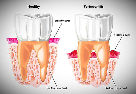 Parodontit och Tandlossning