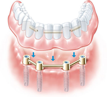 prótesis-removible-sobre-implantes.jpg