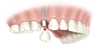 servicio-implantes-dentales-2-e149000434