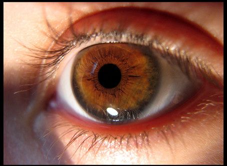 Eye conditions we evaluate and treat: