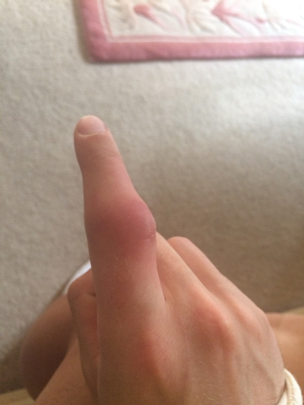 My swollen disfigured finger