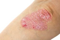 Inflammatory skin conditions