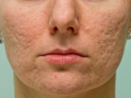 The role of Dermal Clinician's in the management and treatment of scarring associated with Acne.