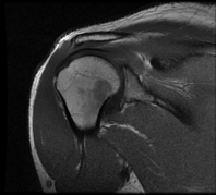 The Clinical Importance Of A High Quality MRI Shoulder Coil