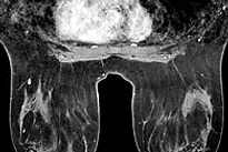 breast mri omaha