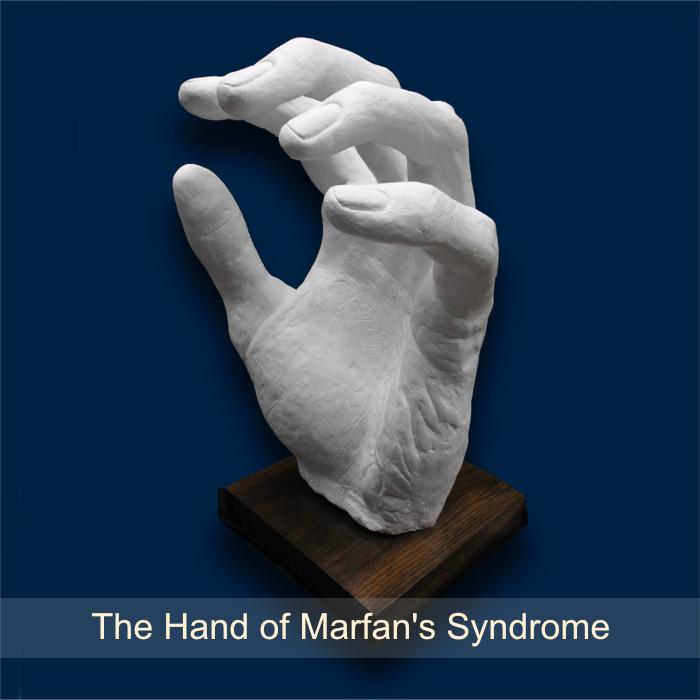 10_HandOfMarfansSyndrome.jpg