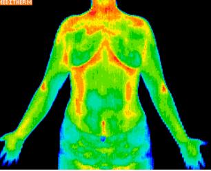 trunk view anterior Digital Infrared Thermal Imaging (DITI)