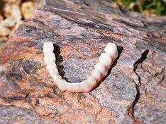Lower Full Zirconium Confi-Dents