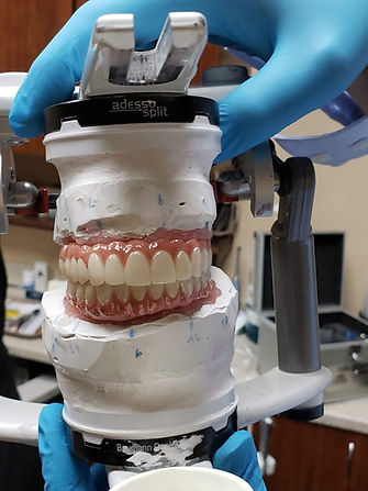 full mouth implant supported dentures