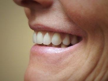 After Confi-Dents