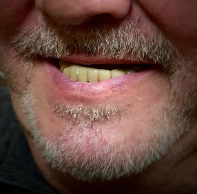 Before Confi-Dents