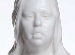 Femme trisomiqe