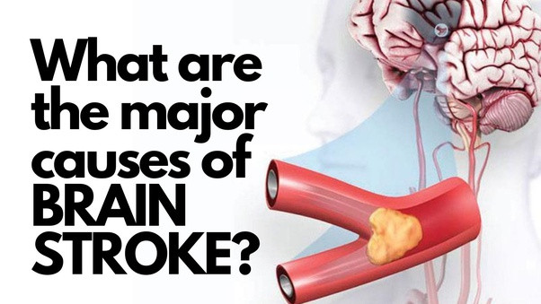 a poster showing the causes of brain stroke