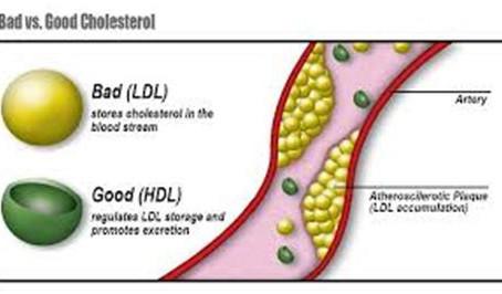 Cholesterol Screening
