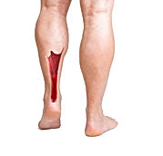 Achilles Tendonitis, or Tendinitis, is caused by overexertion of the Achillies tenton which causes irritation, inflamation, swelling, pain to the tendon.