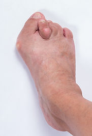 A bunion is a notable bump on the side of the big toe as well as outside of the fifth toe. These can form due to two common causes. One cause is due to ankle equinus (more commonly known as tight calf muscles). As the calf muscle limits the range of motion of the ankle joint, the person will angle their feet out to allow them to walk without having to put the ankle through full range of motion. This makes walking easier; however the adverse effect is that the ground is pushing to the side of the big toe which forces the big toe up and out. The Adductor Hallucis and the Abductor Hallucis are two muscles that work together on the big toe.  The Adductor Hallucis pulls the big toe towards the second toe while Abductor Hallucis should counter that pull.  When the ground pushes the big toe up and out, this gives the Adductor Hallucis mechanical advantage pushing the big toe towards the second toe. This also crowds the second toe forcing the second toe up. This creates a floating toe which ev