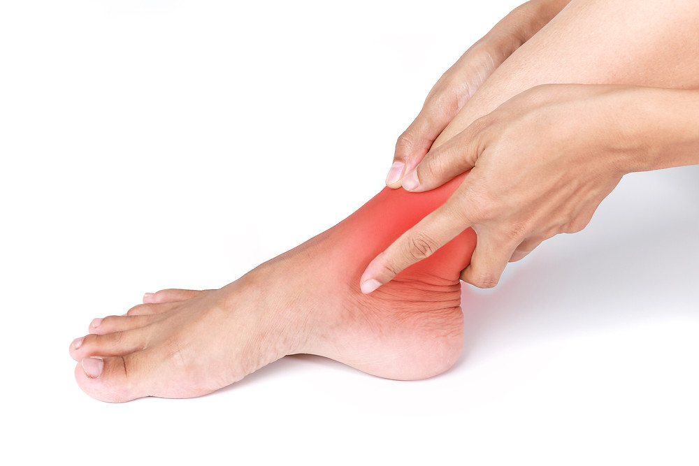 """Ankle pain, ankle Sprains, conservative and surgical treatment, An ankle sprain feels like a """"stretching"""" or partial dislocation of the ankle joint as it bowstrings out of alignment. There are many ligaments, tendons and bones of the ankle and foot which can be injured. One of the most common ligaments injured is called the anterior talofibular ligament, located on the outside of the ankle joint. This ligament is usually the first of many ligaments which can be torn, stretched or even completely ruptured. Typically when a ligament is injured there is localized swelling over the outside of the ankle which also becomes very tender to touch. When the ankle is injured it is difficult to walk and the patient ends up limping for the next several days. There are multiple other structures which can be injured including another ligament called the calcaneofibular ligament which is located on the outside of the ankle as well."""