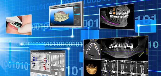 Dental implant digital technology used by Dr. Robert O. Wolf