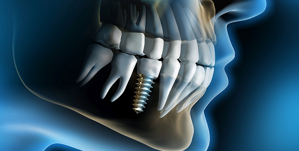 WHAT IS A DENTAL IMPLANT? | DR  ROBERT O  WOLF | NEWPORT