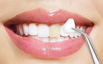 porcelain dental veneers are placed to repair damaged teeth