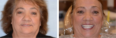 Diane before and after dental implants
