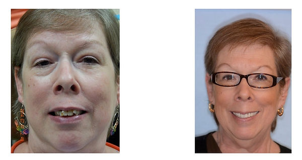 Nancy before and after dental implants