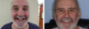 Joe befoe and after dental implants