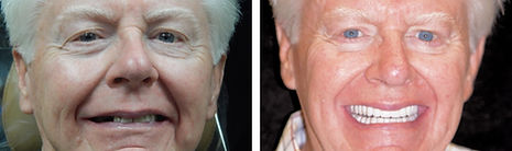 James before and after dental implants