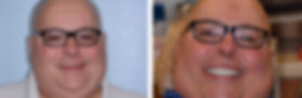 Mike proudly smiling after his dental implant surgery