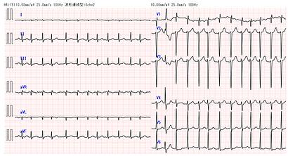 心電図 不整脈