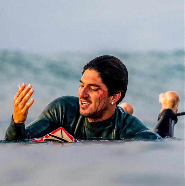 Surfeur brun avecune arcade blessé dans l'eau